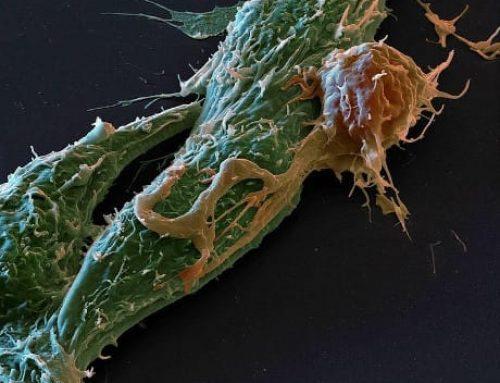 Scoprire i tumori che rispondono all'immunoterapia