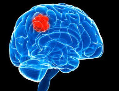 Tumori del cervello: verso una terapia personalizzata