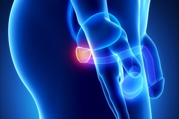 è immunoterapia caldeggiato dallFDA su il neoplasma alla prostata