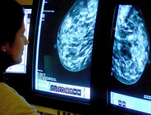 Tumore seno, nuovo test scopre le recidive in fase iniziale
