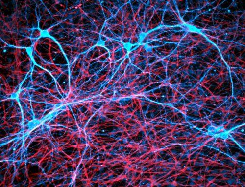 I tumori celebrali possono collegarsi in rete con i neuroni. Inquietante scoperta pubblicata su Nature
