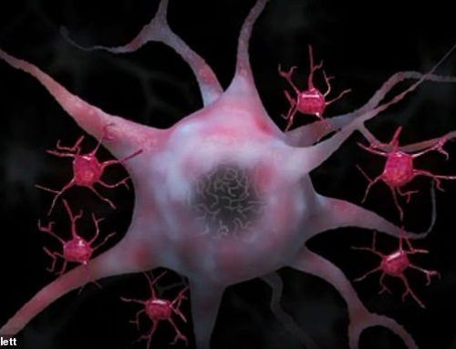 Come si diffonde l'Alzheimer da neurone a neurone