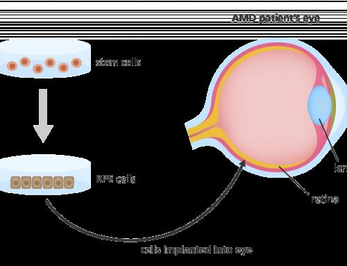 Terapia genica restituisce la vista a due bimbi