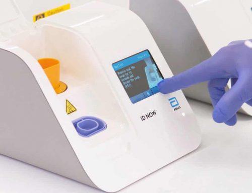 I due test che aiuteranno a prevedere la diffusione di Covid-19 e sconfiggere la pandemia