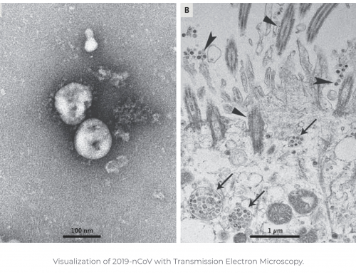 Coronavirus, primi dati positivi dai test preclinici dei vaccini italiani