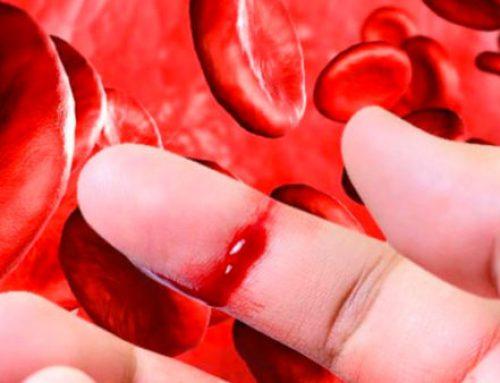 Novo Nordisk rafforza impegno per pazienti emofilici e operatori sanitari