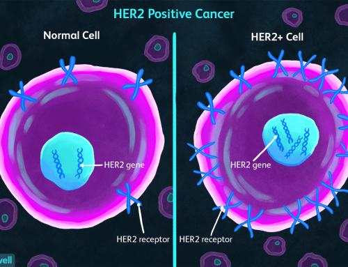 Test genetici 'svolta' per curare cancro al seno, ma solo il 33% dei centri ha le tecnologie