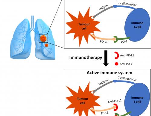 """L'oncologo: """"Scoperta causa resistenza cancro polmone a immunoterapia"""""""